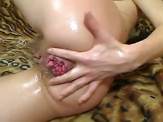 matures anal dance fisting and prolapse